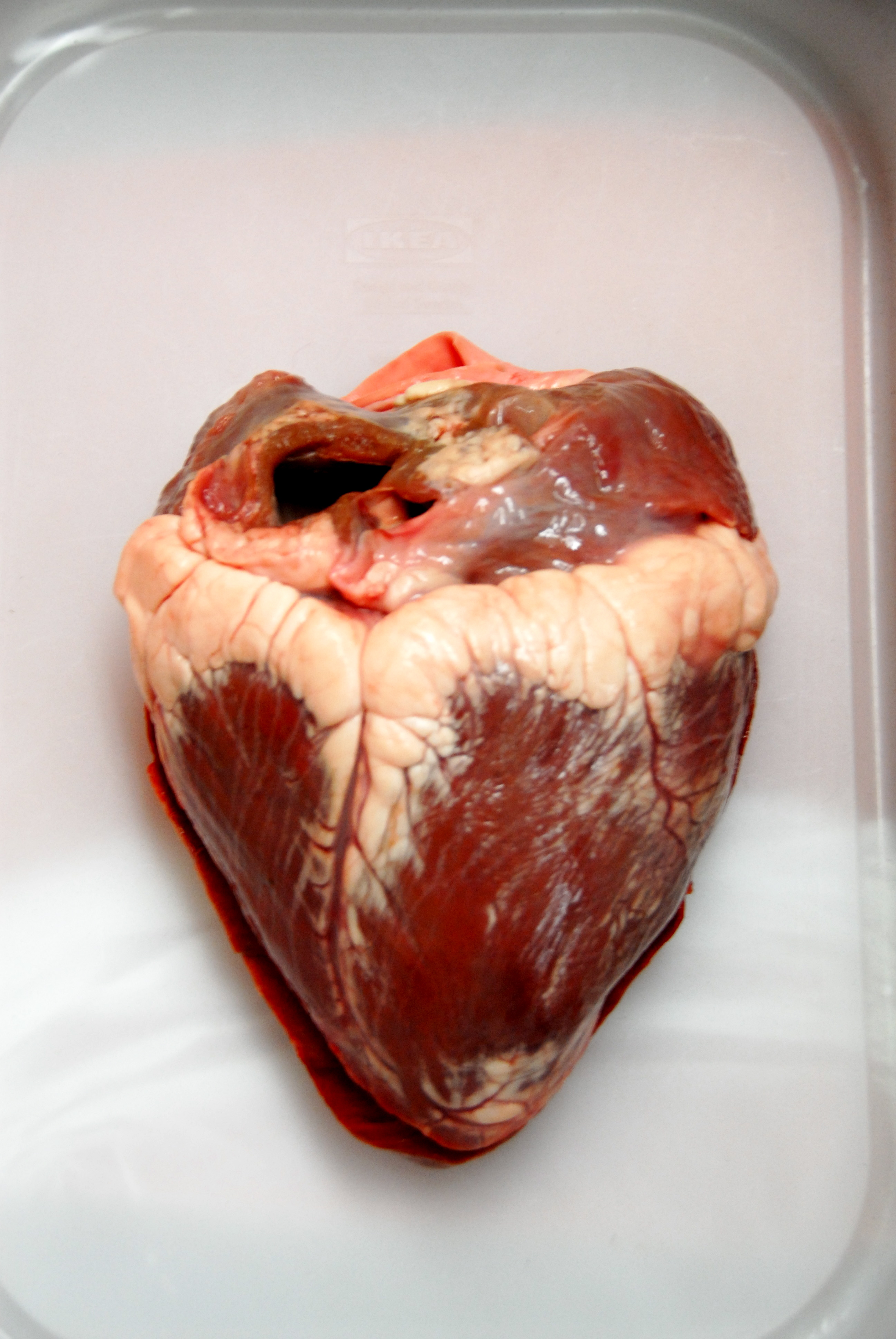 Real human heart images - photo#5